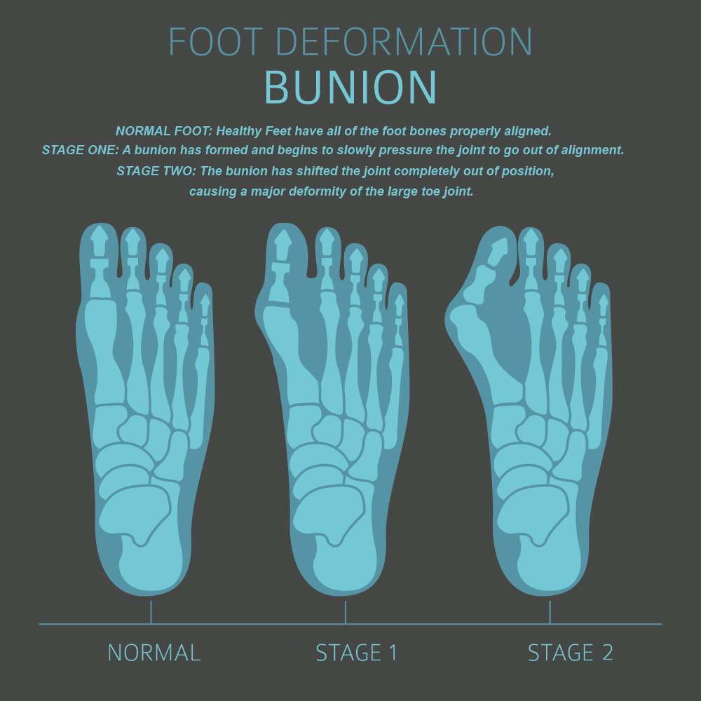 A bunion is the result of a deformity of the toe joint.
