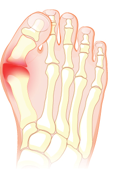 The Hallux Valgus is responsible for the most common type of foot bunions.
