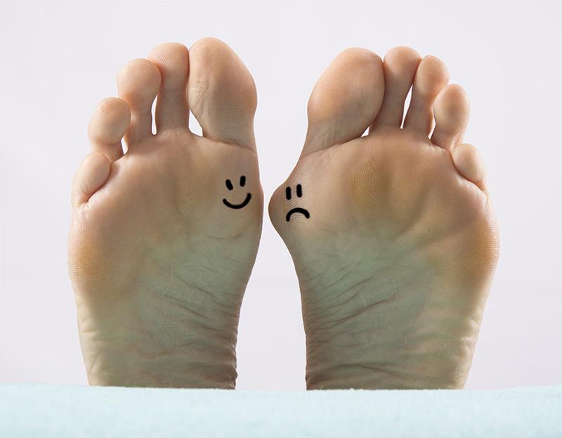 A happy healthy foot vs a sad foot with a bunion.