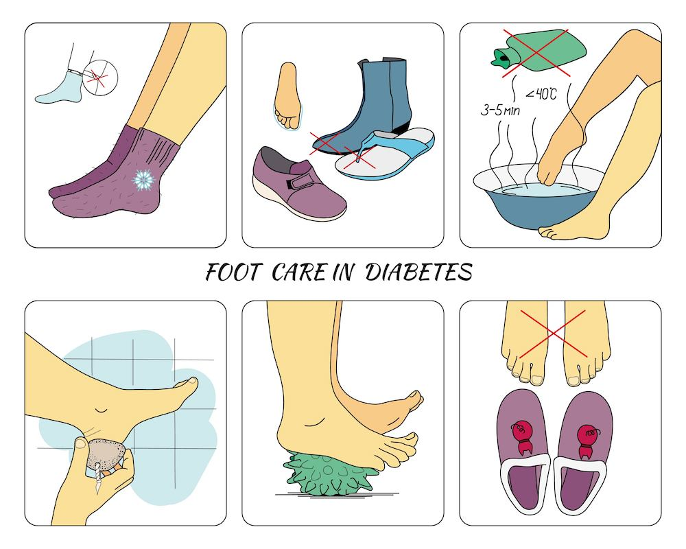Diabetic Foot Care Daily Checklist For Optimal Foot Health