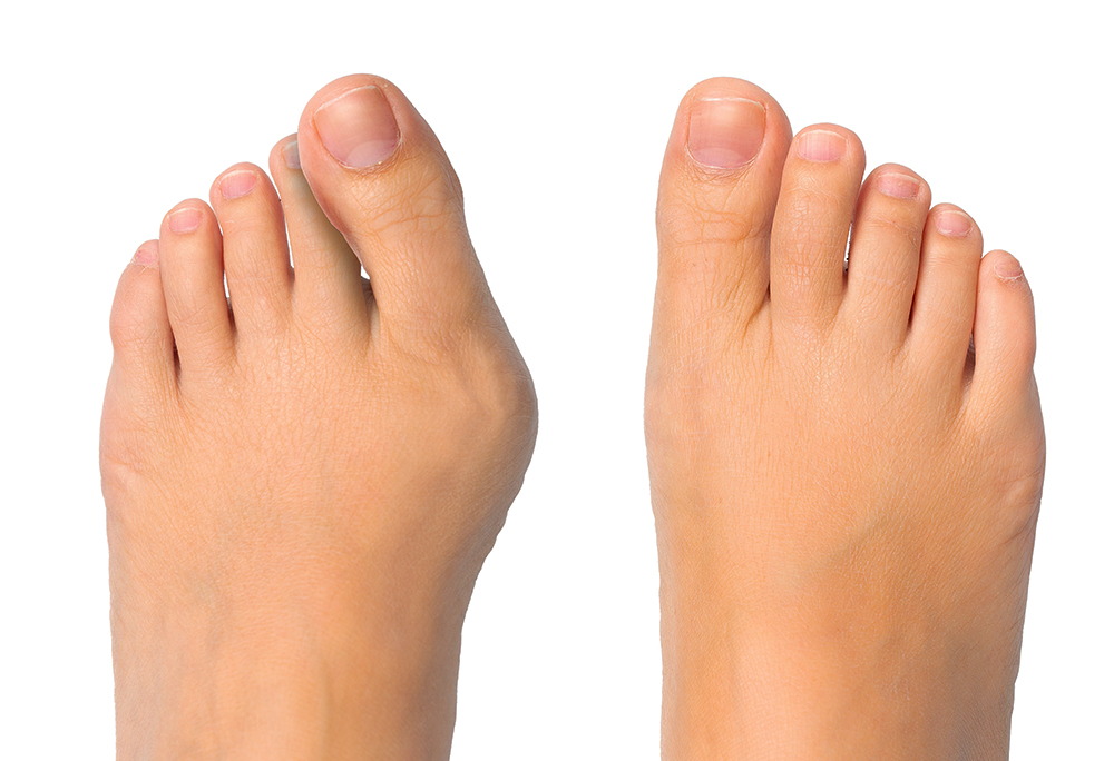 Comparing a foot with a bunion deformity to a normal foot