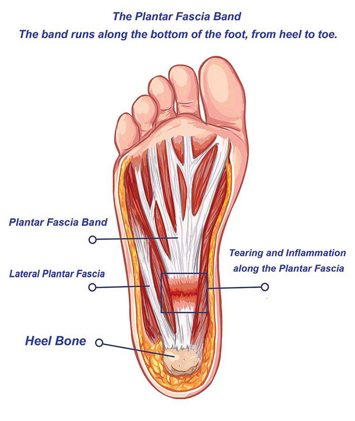 The Plantar Fascia Band Runs the Entire Length Underfoot