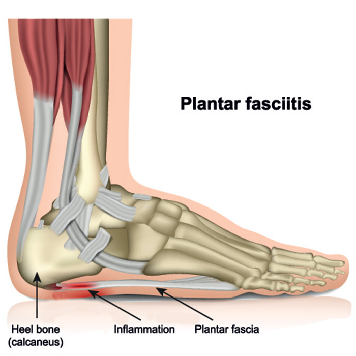 The Plantar Fascia runs under the foot, attaching the Heel to the Toes