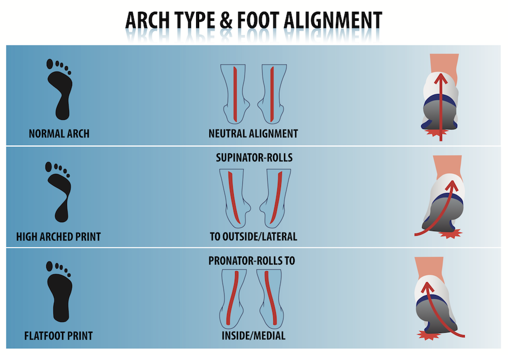 All about arch types and foot alignment