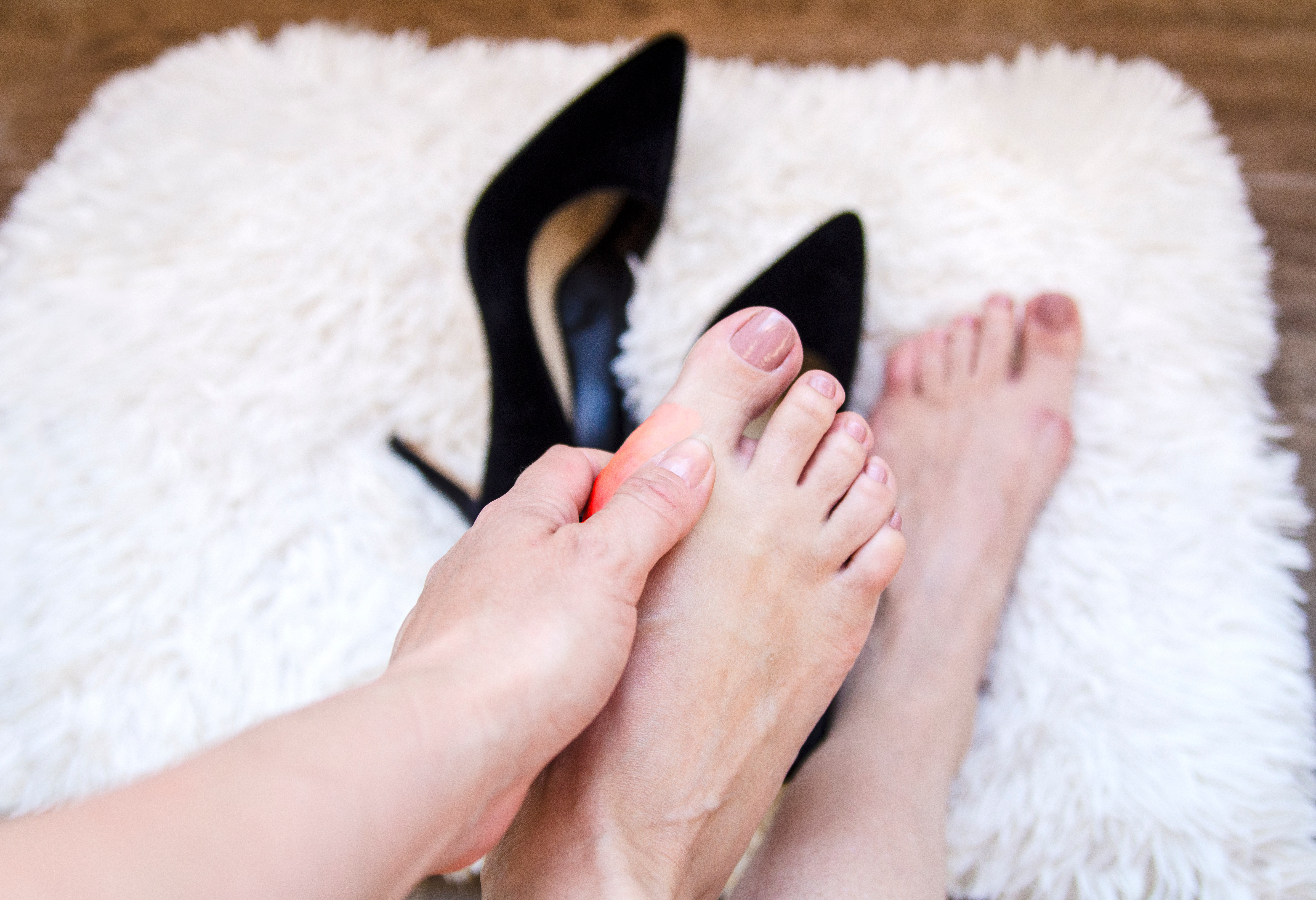 Women suffer with bunion pain due to wearing high heels